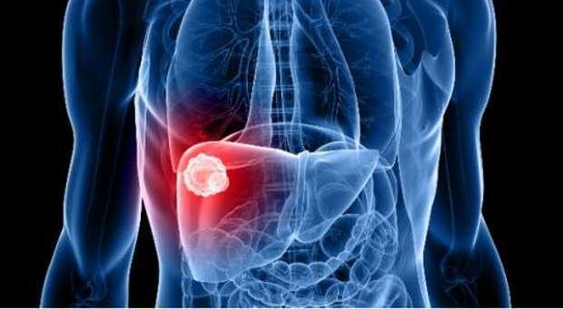 Dia Mundial de Luta contra as Hepatites