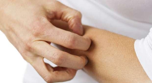 Dermatologistas debatem as doenças da pele em Portugal