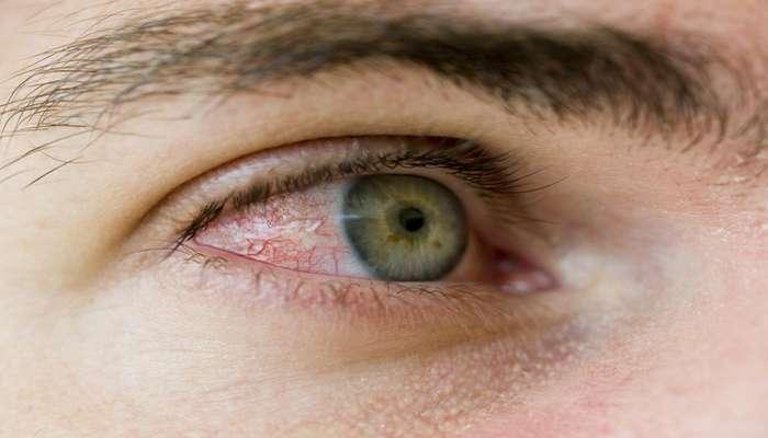 Alergias oculares afetam 20 por cento da população