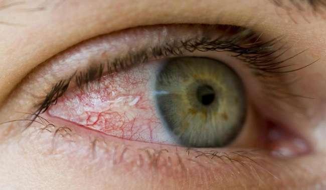 Nova técnica reduz pressão intraocular no glaucoma
