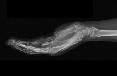 Campanha de Recolha de Radiografias da AMI